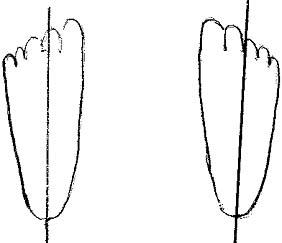 Blade offset intermediate